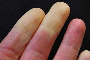 Ease Raynauds Disease